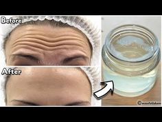 - YouTube Beauty Tips Home Remedy, Health And Beauty Tips, Beauty Hacks, Beauty Care, Beauty Skin, Life Hacks Youtube, Coconut Oil Hair Growth, Wrinkle Remedies, Homemade Cosmetics