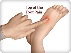 Top of the Foot Pain >> exercises and treatment options.