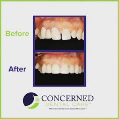 Get your smile right with Concerned Dental Care #perfectsmile #concerneddentalcare #nycdentists #nycdentalcare #dentalcare #oralhygiene