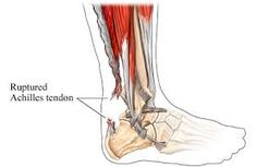 Foot doctors in Long Beach are of the opinion that heel discomfort occurs mainly due to overuse and Achilles Injury Doctor in Long Beach , also suggest that this is due to injury.