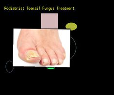 Podiatrist toenail fungus treatment - Nail Fungus Remedy. You have nothing to lose! Visit Site Now