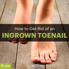 Ingrown toenail - Dr. Axe http://www.draxe.com #health #holistic #natural