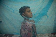 Yemen's war: 'No one knows when he is going to die.  Today,Yemenisacountrydivided.Thewarhaskilled10,000peopleandwounded40,000 more.  Ayoungboyistreatedinhospitalforwoundshesufferedafterbeingsetonfire.Thewar haskilledhundredsofchildren.[MariadelaGuardia/AlJazeera]