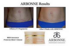 Results after 6 weeks using the Arbonne firming body cream!!!! Find out more and order today at tarahollenbeck.arbonne.com