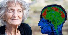 Si bien la pérdida de la memoria es la primera señal de demencia, los expertos sugieren que primero se presentan cambios sutiles en el comportamiento y estado de ánimo.