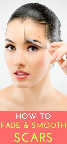 Expert tips to fade & smooth different types of scars.