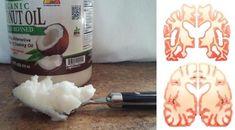 Le Dr Mary Newport a une théorie selon laquelle les corps cétoniques, que le corps fabrique lorsqu'il digère de l'huile de coco, peuvent être une énergie alternative pour le cerveau. Elle croit que l'huile de coco peut offrir d'immenses bénéfices dans la lutte contre la maladie d'Alzheimer. Si sa théorie est exacte, cela pourrait être …