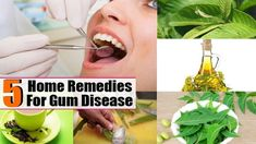 5 Ways to Treat Gum Disease Naturally.  #Gingivitis, or #GumDisease, is a condition characterized by red, swollen or bleeding gums, consistent bad breath, receding gums and the loosening of the teeth. It is caused by a build-up of plaque along the gum lines and can be caused by changes in hormones, poor nutrition and oral hygiene habits, some medications and even genetics. There are, however, a number of effective #HomeRemedies to treat this condition.►►youtu.be/aA5GLdLmizk  Follow…