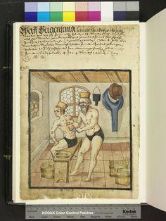 1612 bathers  Cupping with an oil lamp  Die Hausbücher der Nürnberger Zwölfbrüderstiftungen