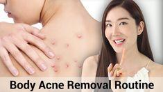 Summer Essentials : Body Acne Removal Routine.  #bodycare #body #bodyacne #wishtrendtv