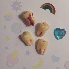 I got my wisdom teeth out today… Owch
