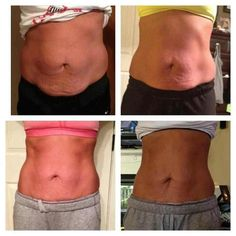 Lifting, Tightening and Smoothing!     These Wraps are AMAZING!!       Follow WrapDeeVa on Facebook!     E-Mail WrapDeeVa@yahoo.com    Order directly at  http://wrapdeeva.myitworks.com