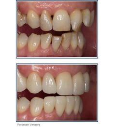 Bad to great! Teeth the way you've always wanted. http://imaginesmiledesign.com