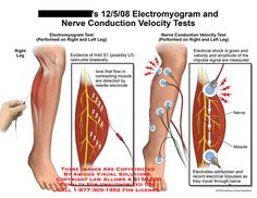 electromyogram   Electromyogram and Nerve Conduction Velocity Tests. Needles will be inserted into the affected muscles during the test to assess electrical activity and to determine whether symptoms are primarily musculoskeletal or neurologic.