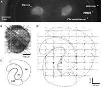 Functional Alteration of the Developing Hippocampus