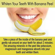 Natural Teeth Whitening Remedies My latest find on Trusper will literally blow you away. Like seriously, you need to hold on to your seat. - Get Your Teeth Whiten Using Banana Peel Teeth Whitening Remedies, Natural Teeth Whitening, Whitening Kit, Get Whiter Teeth, Tooth Sensitivity, Best Oral, Teeth Care, Thing 1, White Teeth