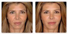Facial Exercise Before and After – Facial Reflexology