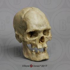Human Male Acromegaly Skull - Bone Clones, Inc. - Osteological Reproductions