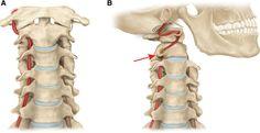 vertebral artery - Google 検索                                                                                                                                                                                 More