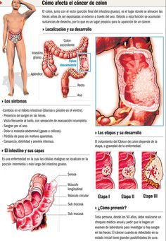 Cancer de colon #infografia
