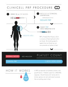 View our interactive infographic about Platelet-Rich Plasma (PRP) Therapy and how it works. MetroMD Cell Therapy are the leaders in offering the latest technology of platelet rich plasma therapy.
