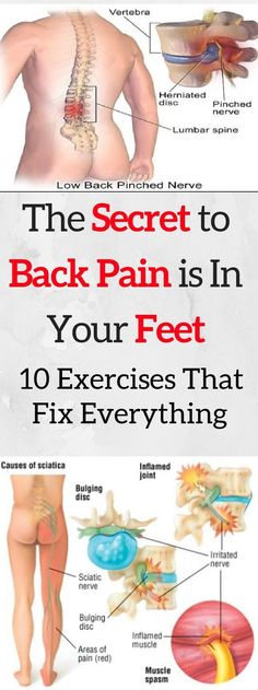 Back pain is a serious problem which affects millions of people around the world. Back pain is a serious problem which affects millions of people around the world. It is most often caused by Sciatic Nerve, Nerve Pain, Sciatica Stretches, Muscle Spasms, Muscle Pain, Back Pain Exercises, Yoga Exercises, Scoliosis Exercises, Period