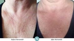 Nerium can help you reduce the appearance of wrinkles on your chest area!   Interested? Visit: www.lc2305.theneriumlook.com