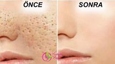 Tips for Getting Rid of Open Pores. How To Close Open Pores on Face Permanently? How To Remove Small Pores From Face Naturally? Getting Rid of Open Pores. Skin Toner, Oily Skin, Beauty Skin, Health And Beauty, Apple Cider Vinegar For Skin, Reduce Pore Size, Get Rid Of Blackheads, Skin Tag, Homemade Face Masks