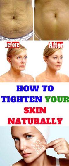 Saggin Skin Remedies How to Tighten Loose Skin and Sagging Skin Natural Skin Tightening, Skin Tightening Cream, Skin Firming, Tighten Stomach, Tighten Loose Skin, Organic Skin Care, Natural Skin Care, Natural Baby, Organic Baby