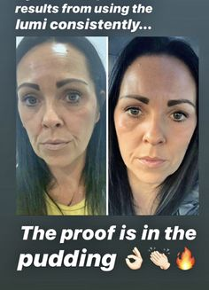 Galvanic Spa, Beauty Secrets, Beauty Products, Healthy Skin Care, Body Butter, Anti Aging Skin Care, Hair Care, Hair Beauty, Nu Skin