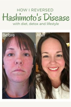 How I reversed Hashimoto's disease with diet and detox. - Health - How I Reversed Hashimoto& Disease with Diet, Detox, and Lifestyle - Hashimotos Disease Diet, Hashimoto Thyroid Disease, Hypothyroidism Diet, Thyroid Diet, Thyroid Symptoms, Thyroid Health, Autoimmune Disease, Thyroid Issues, Gut Health