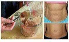 Firm Saggy Stomach Skin Naturally Without Expensive Spa Treatments Nothing is more annoying than a saggy tummy. But why spend lots of money surgery marks Firm Saggy Stomach Skin Naturally Without Expensive Spa Treatments Skin Tightening Mask, Natural Skin Tightening, Loose Skin, Sagging Skin, Body Wraps, Tips Belleza, Spa Treatments, Cosmetic Treatments, Beauty Tutorials