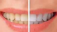 Sbianca i denti con un prodotto naturale