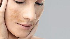 """Determinand un aspect estetic neplacut, care nu numai ca persista, dar se poate si accentua, petele pigmentare pot fi considerate afectiuni care se pot transforma în timp în cumplitul cancer de piele. Va venim in ajutor cu crema de albire pentru ten pigmentat. Aceasta crema se incadreaza in categoria produselor """"pentru albire"""" reducand intesitatea petelor (pistrui, pete de batranete, pete de soare). Pentru mai multe detalii va asteptam in farmacia noastra!"""