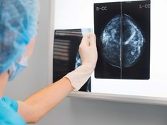 Ribociclib Extends PFS in Premenopausal Breast Cancer      More than 10 months improvement with the CDK4/6 inhibitor versus placebo https://www.medpagetoday.com/meetingcoverage/sabcs/69723?utm_campaign=crowdfire&utm_content=crowdfire&utm_medium=social&utm_source=pinterest