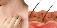 The 7 Most Common Causes Of Itchy Red Bumps Here are the most likely causes of your irritating skin rash.