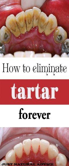 Easy dental care DIY tip