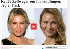 ANNA WILLIAMS: Renee Zellweger, um ícone de beleza, destrói seu r...