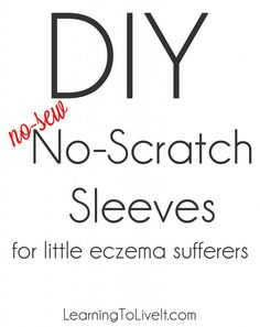 DIY no-scratch sleeves/gloves for toddlers with severe eczema, chicken pox, or any other rash.