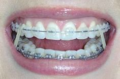 A life which requires you to change your rubber bands after every single meal... | The 26 Stages Of Getting Braces