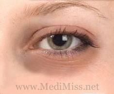 Dark circles under eyes occur generally due to lack of sleep, stress, some disease or it may be due to some hereditary disorders. It is common to have dark circles under the eyes. Read more: http://www.medimiss.net/2012/10/dark-circles-not-anymore.html#ixzz2RCmdMFMW