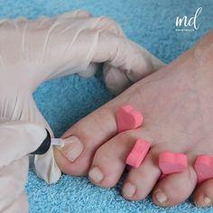 Pedicure Tips, Manicure Y Pedicure, Nail Art Designs Videos, Nail Designs, Tape Nail Art, Diy Hair Care, Creative Nails, Toe Nails, Beauty Nails