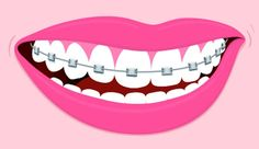 A Grown-Up's Guide To Straighter Teeth