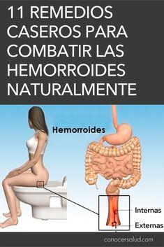 11 Remedios caseros para combatir las hemorroides (almorranas) naturalmente #salud