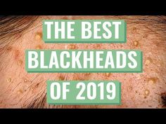 Blackhead's Best Extractions for 2019 Compilation + Q&A Deep Blackheads, Pimples, Blackhead Extraction, Becoming An Esthetician, Pimple Popping, Facial Steamer, Natural Facial, Strong Nails, Just She