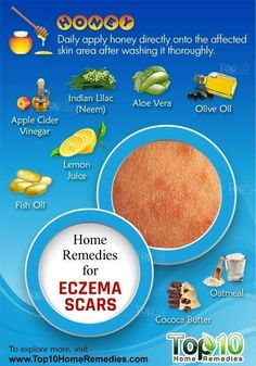 Home Remedies for Eczema Scars. Natural Remedies For Eczema In Babies Home Remedies For Eczema, Scar Remedies, Top 10 Home Remedies, Natural Home Remedies, Home Remedies For Allergies, Health Remedies, Eczema Scars, Acne Scars, Acne Skin