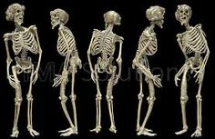 elephant man skeleton - Google Search John Merrick, Joseph Merrick, Anatomy Drawing, Anatomy Reference, Skin Firming, Werewolf, Elephant, Hair Accessories, Art Journals