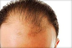 Top 10 Effective Home Remedies for Hair Growth - personal injury lawyer | Health