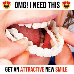 Get the perfect smile instantly! These clip-on teeth veneers are creating smiles & changing lives around the world! Teeth Makeover, Smile Makeover, Perfect Smile Teeth, Veneers Teeth, Dental Veneers, Polygel Nails, Dental Cosmetics, White Smile, Teeth Care