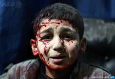 #Syria - An injured Syrian child waits for treatment at a makeshift hospital in Douma following reported air strikes
